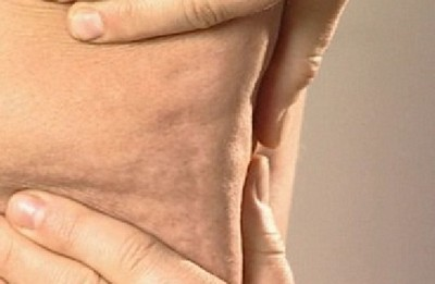 Бывает ли у мужчин целлюлит: фото проблемной кожи на животе