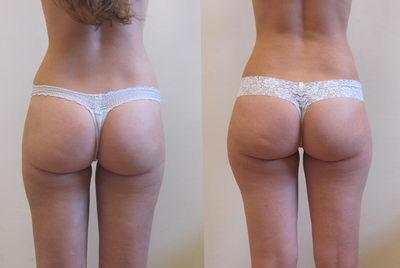 Целлюлит до и после массажа