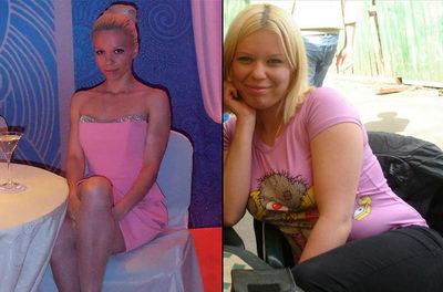 Браслет для быстрого похудения до и после