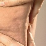 Бывает ли у мужчин целлюлит: мифы и реальность